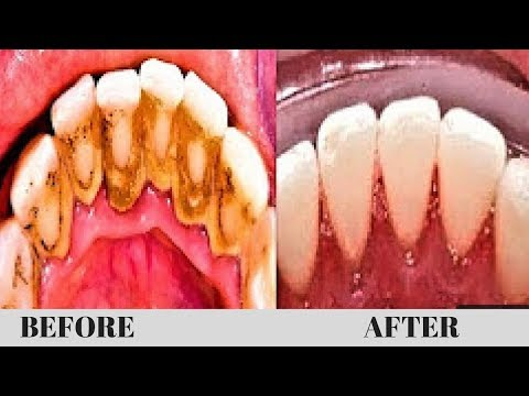 HOW TO REMOVE DENTAL PLAQUE WITH GOING TO THE DENTISTS