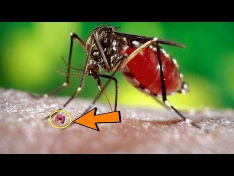 How to Get Rid of Mosquito Bites Fast - 5 Natural Home Remedies