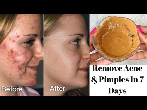How To Get Rid Of Acne & Pimples In Just 7 Days | Get Clear & Flawless Skin