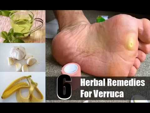 6 Effective Herbal Remedies For Verruca