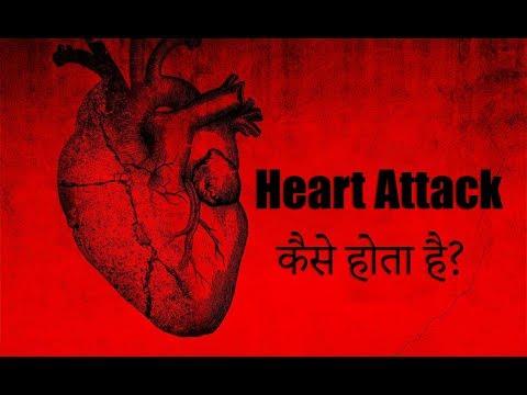 Heart Attack कैसे होता है?