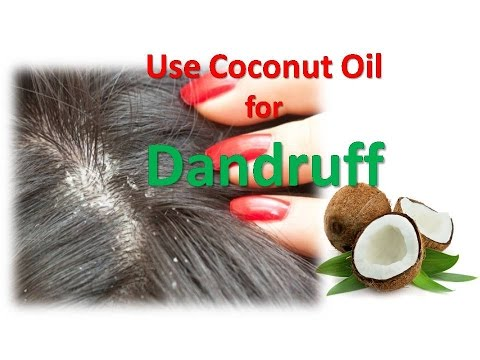 Use Coconut Oil for Dandruff - How to Treat Dandruff and Grow Hair Faster