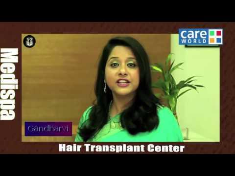 4 Tips before going for Hair Transplant
