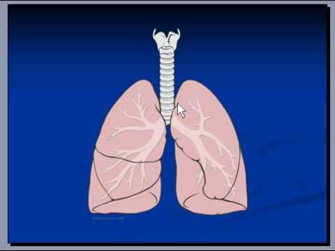 Lungs, Macroscopic Anatomy, Pneumonia