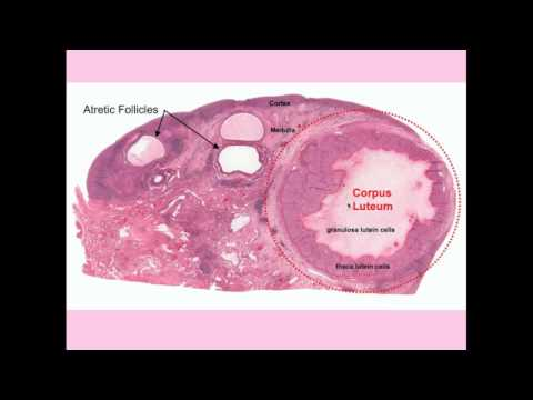 Ovarian Cysts - CRASH! Medical Review Series