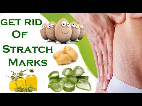 Use These Natural Remedies And Remove Stretch Marks In 7 Days