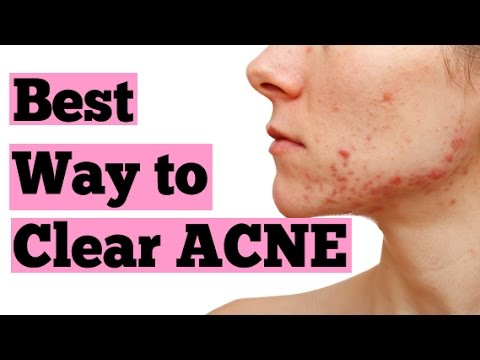 How to Clear Acne | Best Acne Treament | How to Treat Acne Naturally | Best Acne Remedy