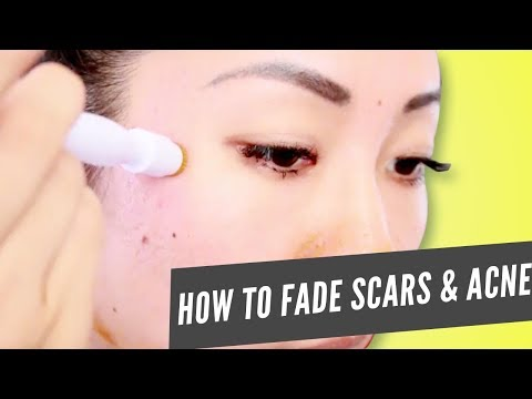 How to Use the Banish Scarring and Active Acne Kit