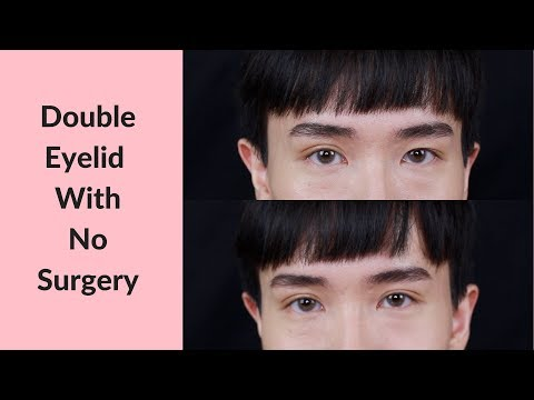 How To Get Double Eyelid Without Surgery