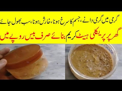 HOW TO GET OF PRICKLY HEAT OVERNIGHT||HOME REMEDIES FOR PRICKLY HEAT