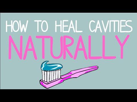 How to Heal Cavities NATURALLY