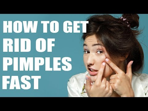 This Is How Models Get Rid Of Pimples (Acne) Overnight Fast | Top 10 Skin Care Home Remedies