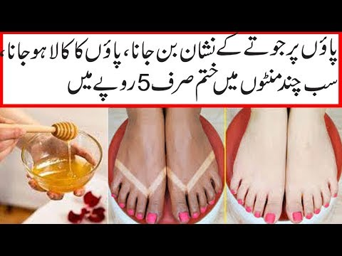 SUMMER SKIN CARE||HAND AND FOOT WHITENING TIP||HAND AND FOOT WHITENING LOTION