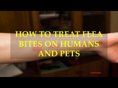 HOW TO TREAT FLEA BITES ON HUMANS AND PETS