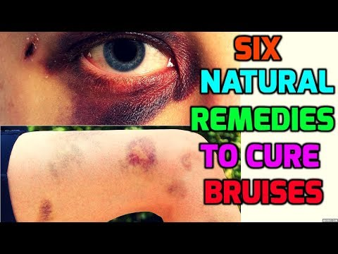 Six Natural Remedies to Cure Bruises | How to get rid of Bruises fast | Bruises Removal