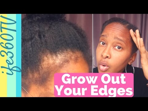 How to Grow Out Your Hairline CHALLENGE