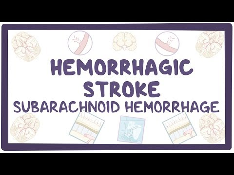 Hemorrhagic stroke, subarachnoid hemorrhage - causes, symptoms, diagnosis, treatment, pathology