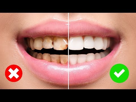 4 Simple Ways to Naturally Reverse Cavities and Heal Tooth Decay