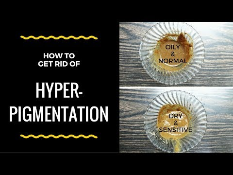 How To Get Rid Of Hyper Pigmentation Around Mouth, Dark Spots & Acne Scars Naturally At Home