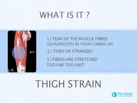 Thigh Strain