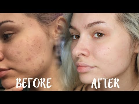 HOW I CLEARED MY SKIN/ GOT RID OF TEXTURE - SKIN CARE ROUTINE | Talia Mar