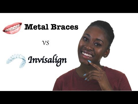 Pros and Cons - Metal Braces vs Invisalign + Update