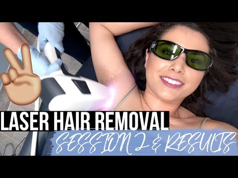 GETTING LASER HAIR REMOVAL: 2nd Appointment & RESULTS