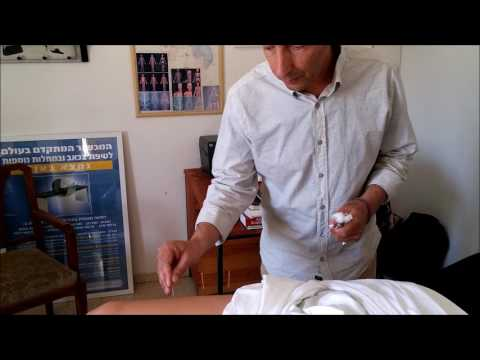 Treating Hay fever with Acupuncture