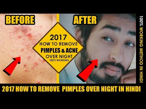 2017 How to Remove  Pimples Over Night in Hindi | Acne Treatment kit | Remove pimples from face
