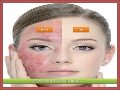 How To Get Rid of Redness on Face - 7 Most Effective Natural Ways