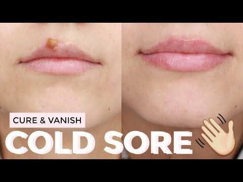 HOW TO : Cure a cold sore FAST | Healed & Scab Free