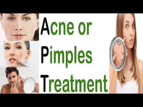 Acne Scars Treatment| Pimples and Acne Treatment| Home Remedy for Acne & Pimples| kil muhase ka ilaj