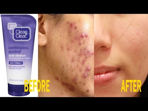The best moisturizer  for oily and acne prone skin| Remove Acne | Clean and Clear Moisturizer Review