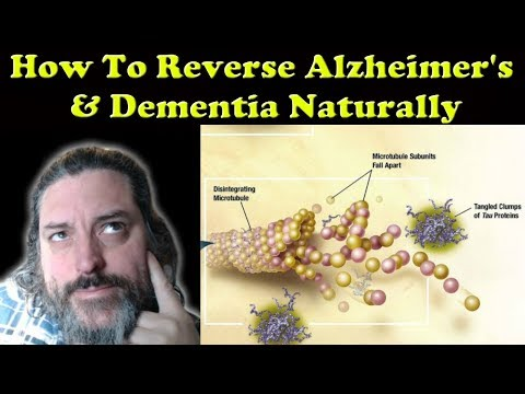 How To Reverse Alzheimer's & Dementia Naturally