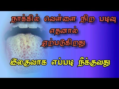 Naakkil vellai nira padivu neenka |  நாக்கில் வெள்ளை நிற படிவு நீங்க இலகுவான வழி