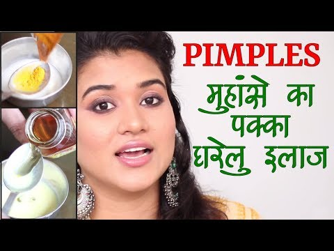 Home Remedies for Pimples / Acne (Hindi)