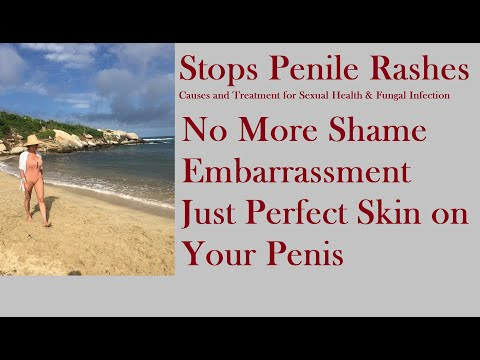 Causes and Treatment for Penile Rashes? Watch This
