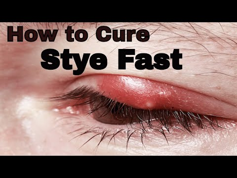 How to Treat a stye fast : How to Get Rid Of Stye - VitaLife Show Episode 118
