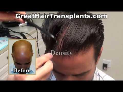 Dr. Brett Bolton Hair Transplant Results