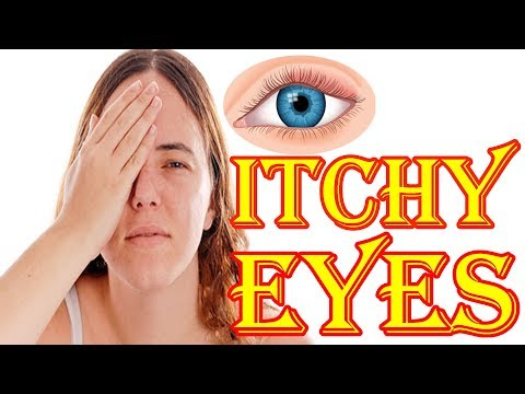 Home Remedies For Itchy Eyes Allergies | Itchy Eyes Treatment | How To Stop Itchy Eyes