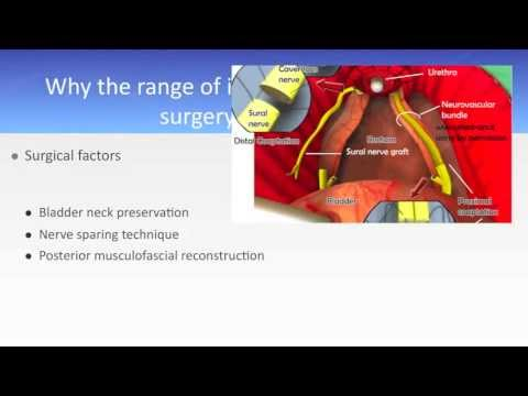 Prostate cancer, incontinence after prostatectomy the scale of the problem 2013