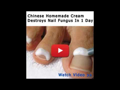How To Get Rid Of Toenail Fungus In A Day - Can You Wear Nail Polish With Toenail Fungus?