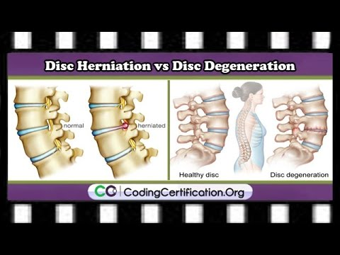 HCPCS and CPT Codes FAQs | Disc Herniation vs. Disc Degeneration