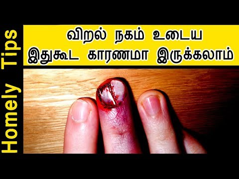 விரல் நகம் உடைய இதுகூட காரணமா இருக்கலாம் ! remedy for broken nails in tamil | Homely Tips
