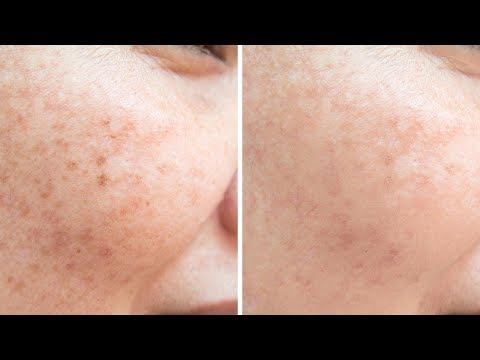 Permanently Get Rid Of Freckles in Naturally    Freckles Removal Naturally