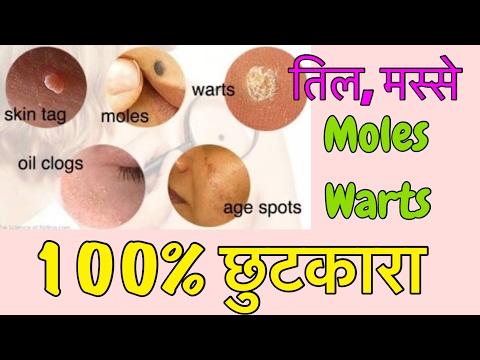 Natural Remedy to Remove Moles, Warts, Pimples, Acne, Age Spots | 100% EFFECTIVE | JSuper Kaur