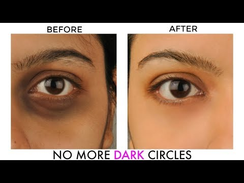Get Rid of Dark Circles Under Eyes Overnight Fast Naturally and Permanently | Cure It Naturally