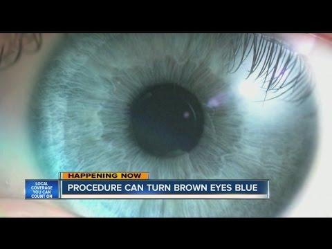Procedure can turn brown eyes blue