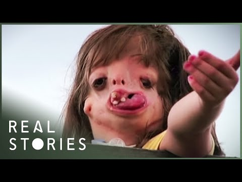 Juliana: The Girl With The New Face (Full Documentary) - Real Stories