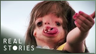 Juliana: The Girl With The New Face (Medical Documentary) - Real Stories